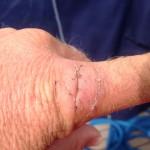 Des Skippers Finger wieder fadenfrei
